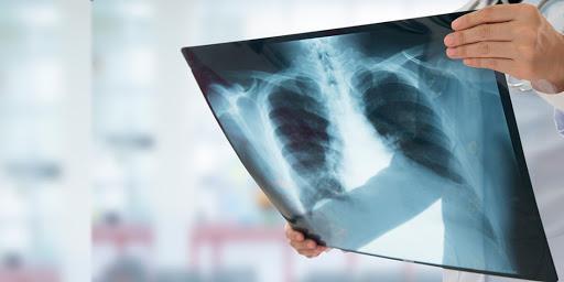 Doença é confirmada pela radiografia do pulmão